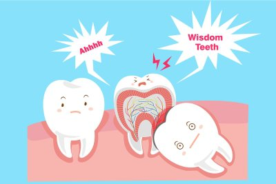 Wisdom Tooth Removal in Marietta, GA